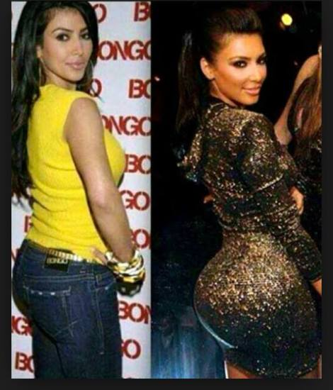Kim K surgically enhanced